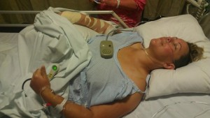 Corinna after her spinal surgery